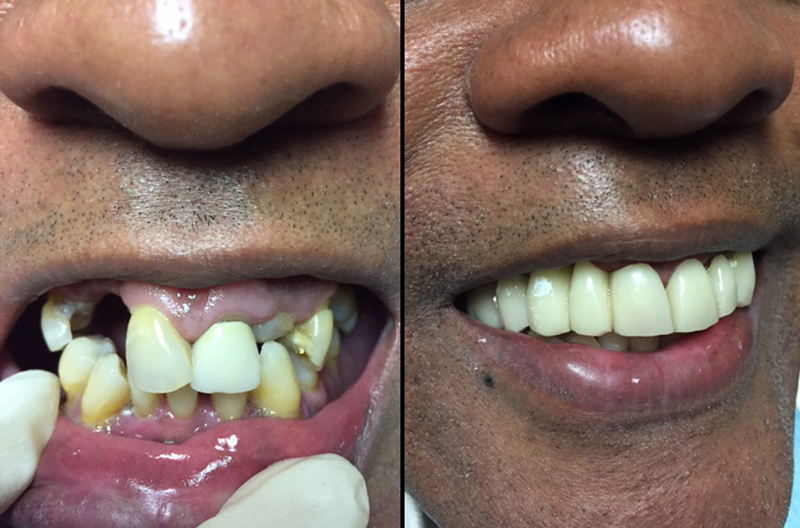 Before and after dental procedure 2