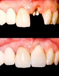 Before and after dental implants 1