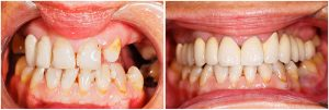 Before and after dental implants 3