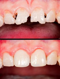Before and after dental restoration 1