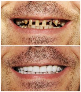 Before and after dental implants 5
