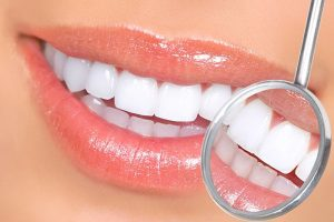 Lynbrook Long Island teeth whitening patient with dental mirror showing white teeth
